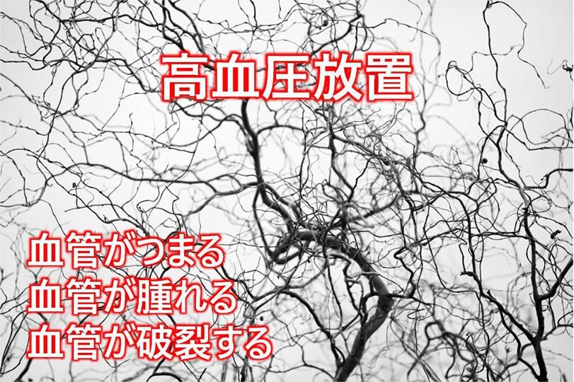 高血圧放置 血管がつまる 血管が腫れる 血管が破裂する